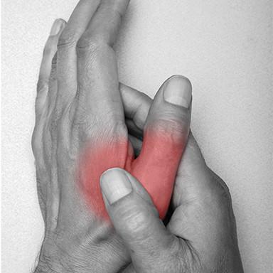 Hands, Pain, Arthritis, Chiropractor Comber